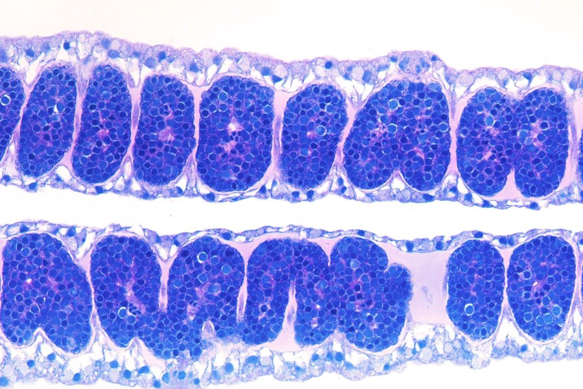 <i>Chiropsalmus quadrumanus</i>